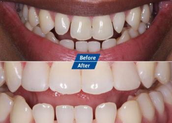 Dental Implants Before After